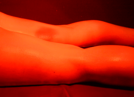 적외선 치료(뒤쪽)