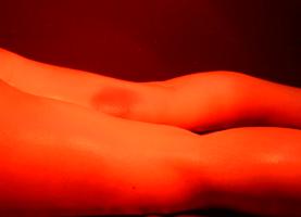 적외선 치료(앞쪽)