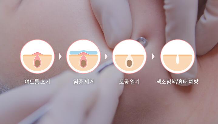 여드름초기-염증제거-모공열기-색소침착,흉터예방
