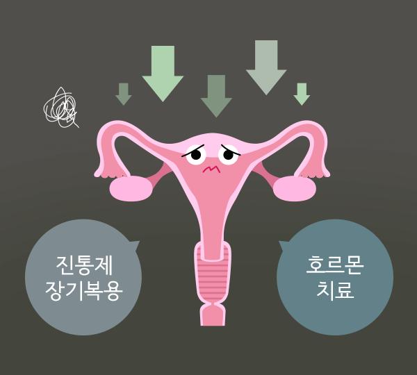 진통제 장기복용, 호르몬치료